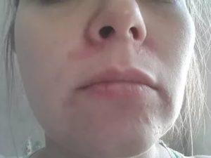 Зуд лица шеи, апельсиновая корка, затем отек глаз, носа