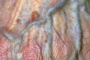 Рваные половые губы