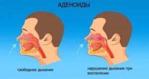 Не дышит одна ноздря