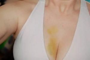 Жёлтый синяк на груди