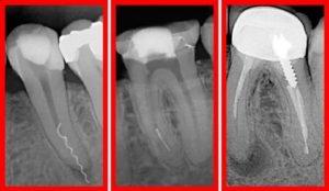 Зуб после перелечивания каналов болит, что делать?