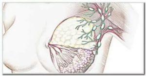 Увеличен лимфоузел при фиброаденома и мастопатии