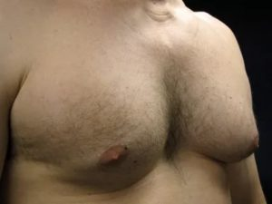 Опухшие большие ореолы