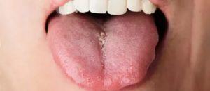 Белая болячка на языке болит