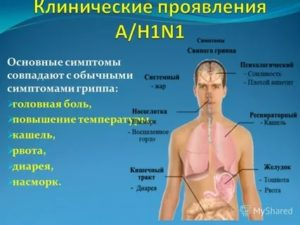 Ломота в теле, температура, понос