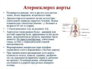 Склероз аорты. ИКС