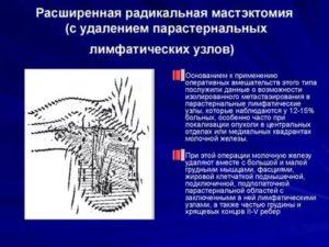 Парастернальный лимфоузел