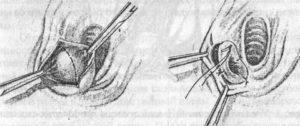 Бартолинит после родов, без гноя - с кровью