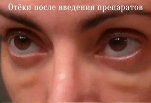 Отек под глазом после филлера