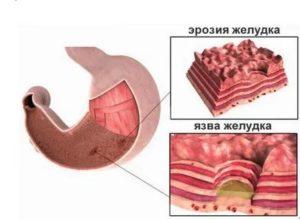 Курс лечения эрозии желудка