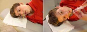 Неэффективное лечение гайморита или остаточные явления?