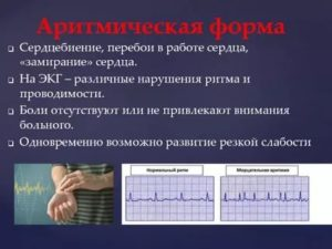 Перебои в ритме сердца во время нагрузок