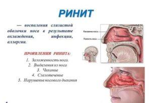 Ринит беременных, назонекс или тафен, заложенность обеих ноздрей без выделений