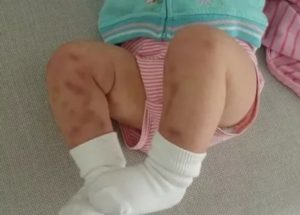 Тромбоцитопатия у ребенка