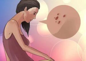 Папиллома при беременности