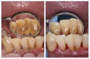 Сильные боли после снятия зубного камня
