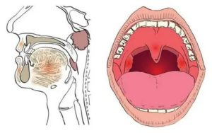 Блокада миндалин и неприятные ощущения после
