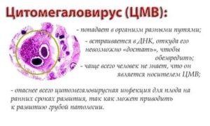 Цитомегаловирус в мазке при беременности