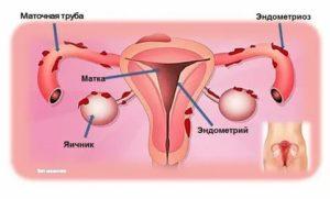Лейкопения, хр. Тонзиллит, эндометриоз