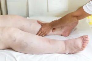 Одышка, отеки ног