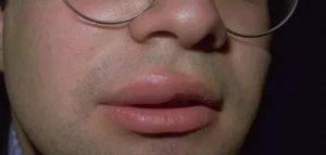 Опухла верхняя губа, болят десна