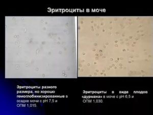 Цистит и эритроциты в моче