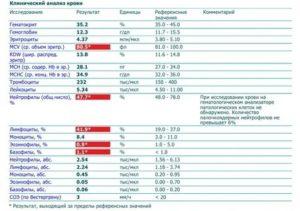 В анализах крови у ребенка лимфоциты повышены