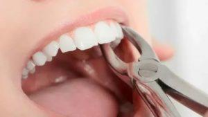 Боль после удаления 46 зуба