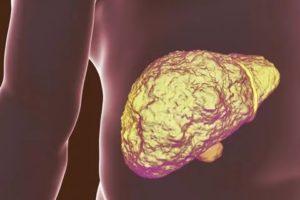 Гепатит неясной этиологии