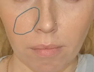 Опухло крыло носа