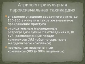 Тахикардия до 150