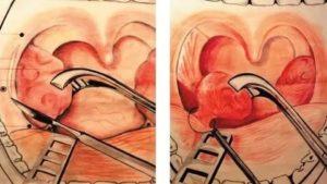 Подрезание миндалин