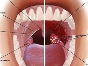 В горле странная шишка, не мешает, хронический тонзиллит