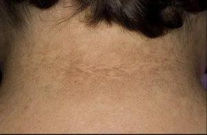 Светло-коричневые пятна на коже шеи