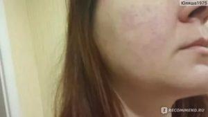 Аллергия с волдырем на метронидазол