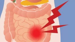 Распирание кишечника