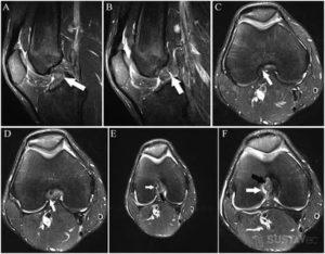 Расшифровка МРТ, показания к артроскопии
