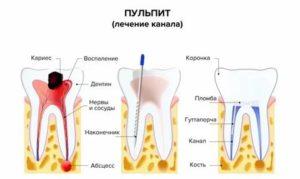 Острая зубная боль, открытый канал, антибиотики,