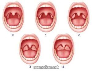 Разные миндалины