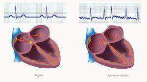 Аритмия сердца, антитела к проводящей системе сердца