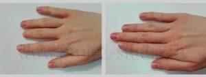 Удлинение фаланги большого пальца руки