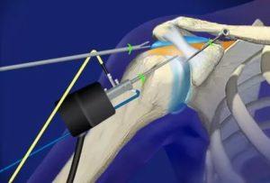 Реабилитация после атероскопии правого плечевого сустава
