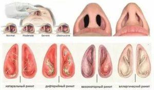 Отек слизистой носа с одной стороны