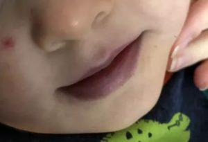 Синеют губы после улицы у ребенка