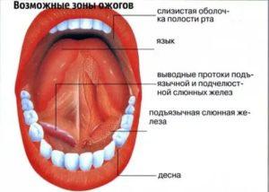 Ожег слизистой горла