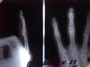 Перелом средней фаланги 4 пальца правой руки