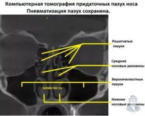 Пневматизация пазух носа не нарушена