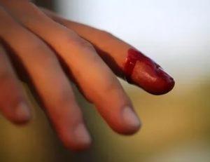 Прикусила палец белка (без крови и царапин)