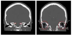 МРТ головного мозга показало снижение пневматизации сосцевидного отростка
