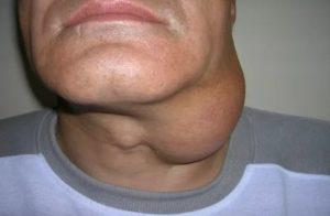 Жировик в горле